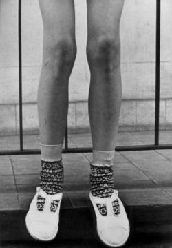 Edith Buch, Kinderbeine, 1950